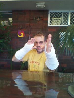 kung fu hands